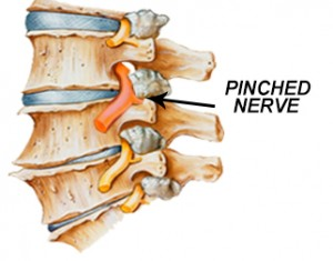 pinched_nerve