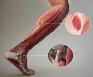 Dr. Allen Maryott Rocky Hill - Leg Sprain