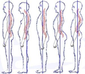 Dr. Allen Maryott Rocky Hill - Posture Types