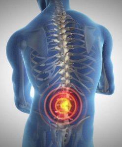 Dr. Allen Maryott Rocky Hill - Back Pain